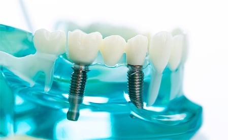 ucq_implantología_ec.3.jpg